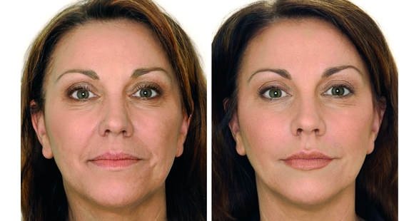Dermal fillers - Lip fillers - before and after