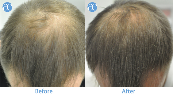 PRP for hair - before and after