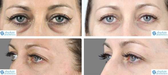 PRP treatment for dark circles before and after