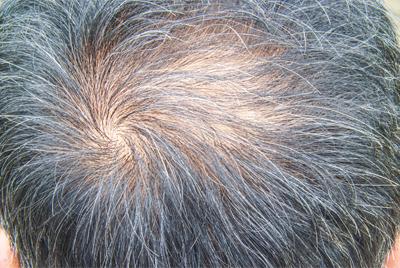 PRP for hair loss - male pattern baldness