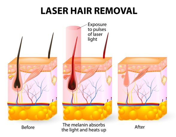 How does laser hair removal work