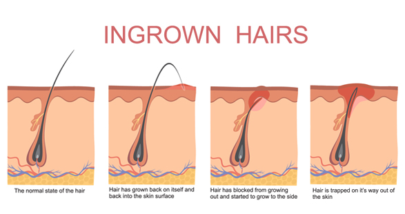 Ingrowing hair removal