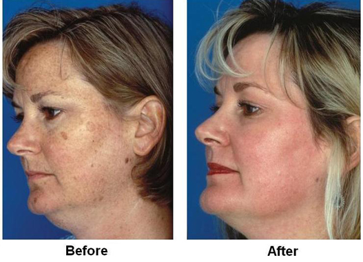 Obagi Blue Peel - Before and after