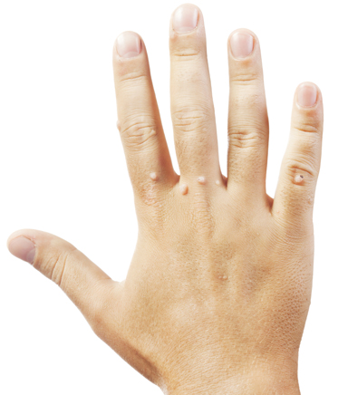 Warts on hand - Cryotherapy