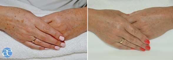 Age spots - Liver spots treatment - IPL Before and after