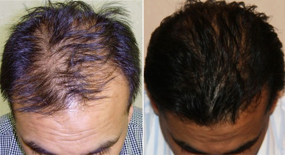 Hair Transplant - Before and after