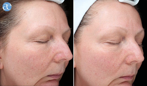 Hyaluronic acid - The Revitaliser before and after