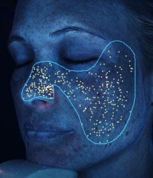 Hyperpigmentation -bacteria levels - Visia