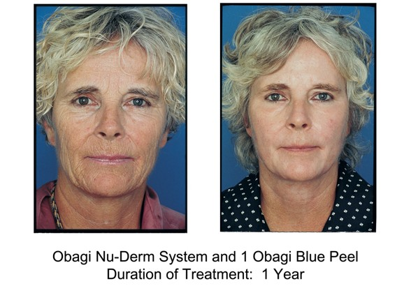 Obagi Blue Peel - Before & After 1 year