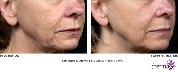Thermage face treatment - Before and after