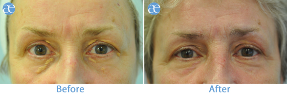 Xanthelasma treatment before and after - Electro surgery