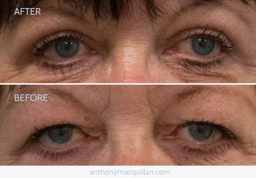 Blepharoplasty eyelid surgery - Before and after
