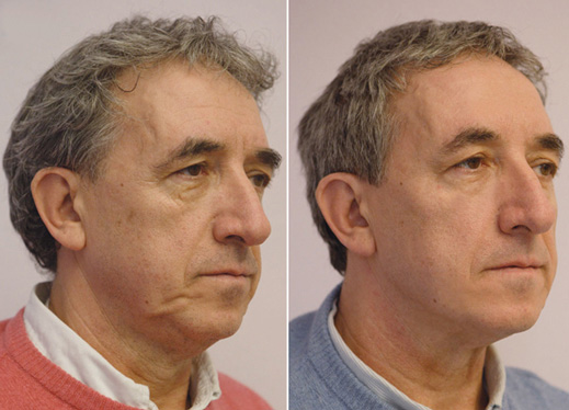 Non surgical facelift - Silhouette Soft - Before and after