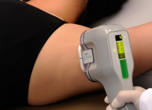 miraDry treatment for underarm sweating