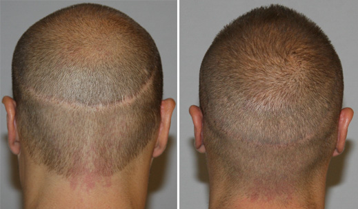 Hair Transplant - FUT scar repair - before and after