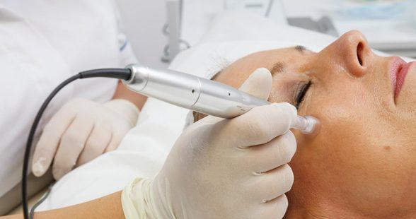 Edermastamp - Micro neeldling - Acne scar treatment