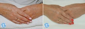 the hand makeover