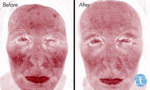 collagen boost