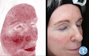 collagen booster treatment