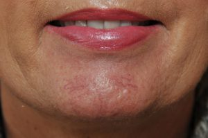 red veins on the chin