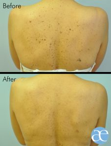 lump or bump removal with electro surgery