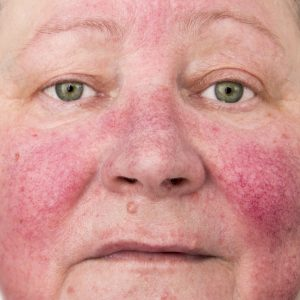 red veins and rosacea