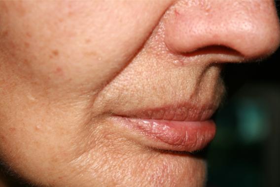 Laser Skin Rejuvination - Jowls - Fine lines treatment