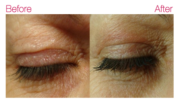 plexr eye lift - before and after