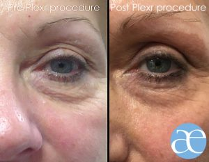 Plexr eye lift for hooded eyes - before and after
