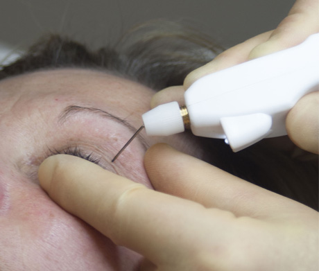 Plexr - non surgical eye lift procedure