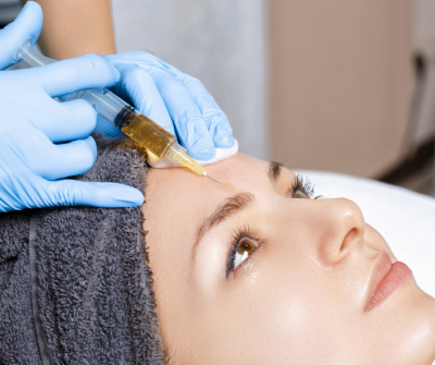 PRP Facial using your Platelet-Rich Plasma